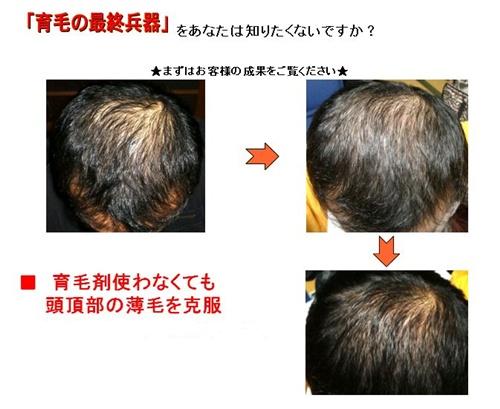 育毛の最終兵器.jpg